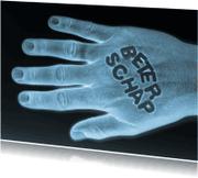 Beterschapskaarten - Beterschap op hand - rontgen